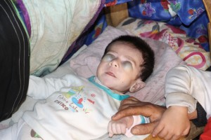 کودک بدون چشم ایذهای، چشم انتظار حمایت مسئولین